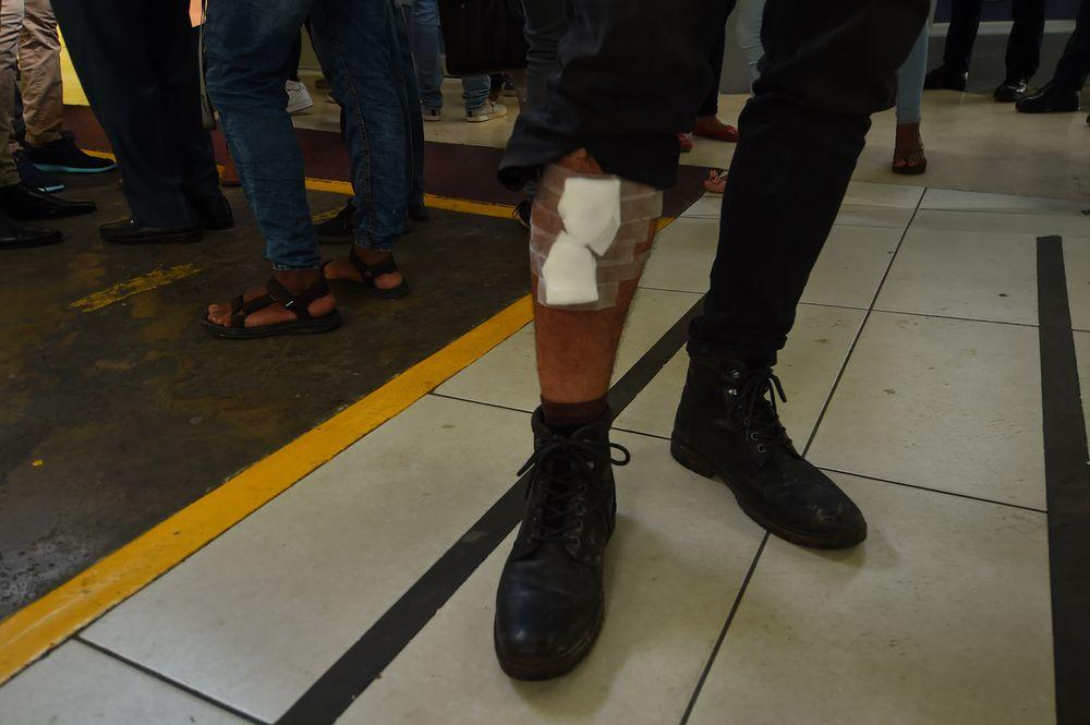 'A un muchacho le rompieron la pierna a toletazos', un relato desde el corazón de la protesta contra las reformas