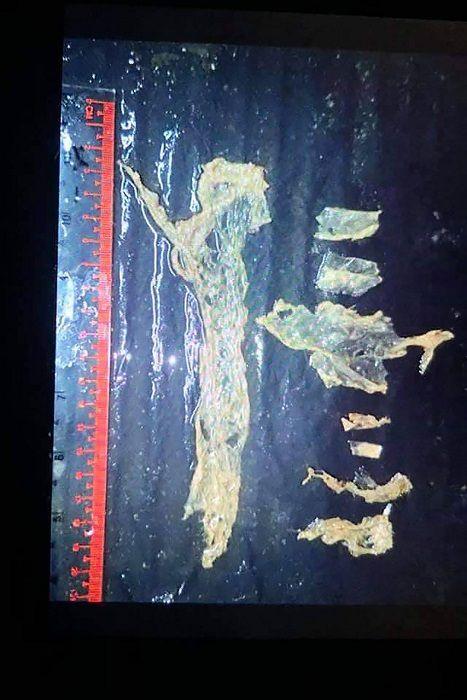 Tailandia: muere bebé dugongo por infección en su estómago tras comer plásticos